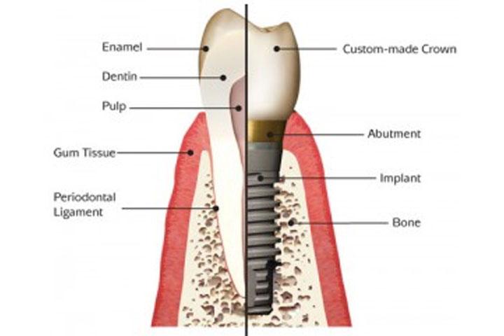 Implant Surgery 1