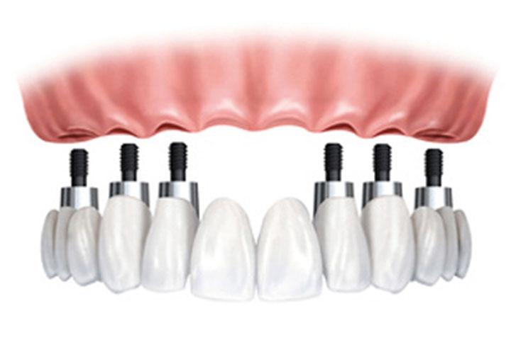 Implant Surgery 4